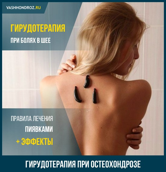 Гирудотерапия при остеохондрозе шейного отдела